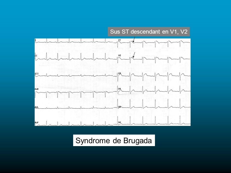 Syndrome de Brugada Sus ST descendant en V1, V2