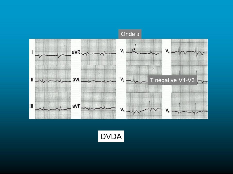 DVDA Onde T négative V1-V3
