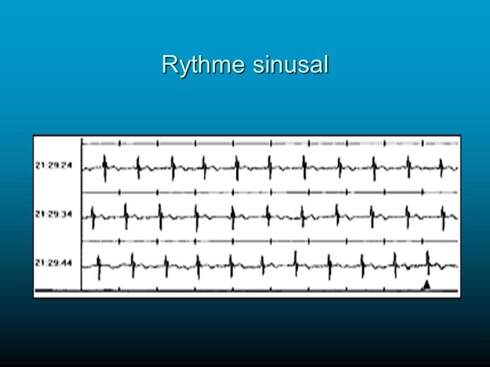 Rythme sinusal