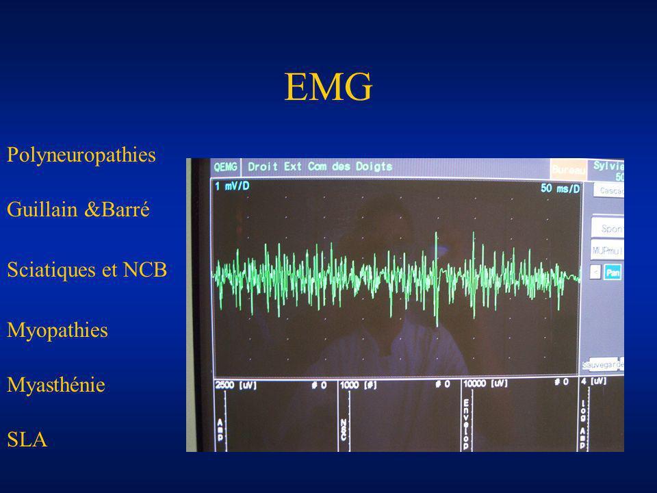 EMG Polyneuropathies Guillain &Barré Sciatiques et NCB Myopathies Myasthénie SLA