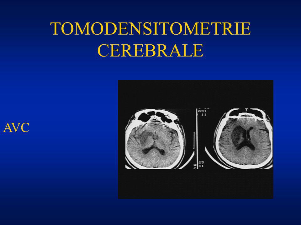 TOMODENSITOMETRIE CEREBRALE AVC