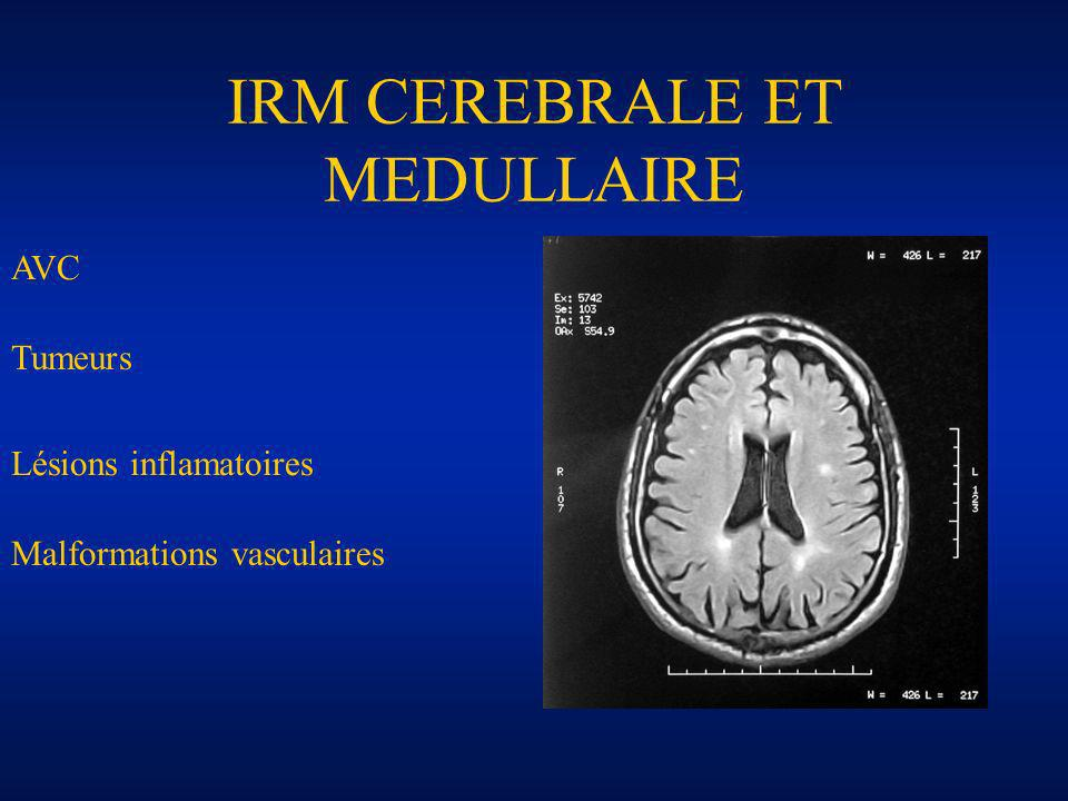 IRM CEREBRALE ET MEDULLAIRE AVC Tumeurs Lésions inflamatoires Malformations vasculaires