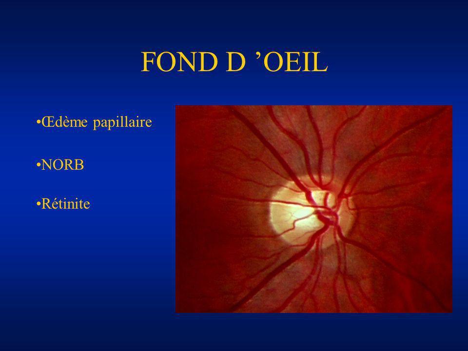FOND D OEIL NORB Œdème papillaire Rétinite