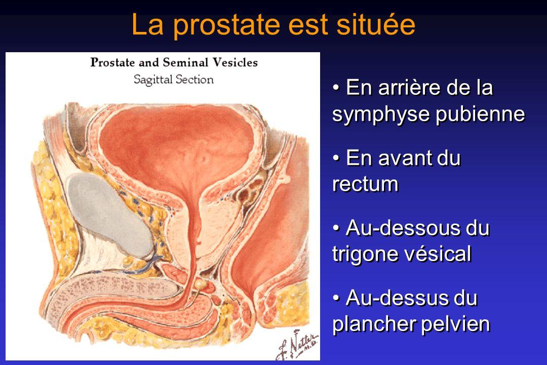 La prostate a la forme dun cône A base supérieure sur laquelle sapplique le trigone vésical, ce qui explique les rapports étroits avec les méats urétéraux et le col (orifice dentrée de lurètre) A sommet inférieur (ou bec), par où sort lurètre A base supérieure sur laquelle sapplique le trigone vésical, ce qui explique les rapports étroits avec les méats urétéraux et le col (orifice dentrée de lurètre) A sommet inférieur (ou bec), par où sort lurètre - lurètre traverse la prostate de haut en bas, - en formant un angle de 35° ouvert par lavant, - dont le sommet correspond au veru montanum.