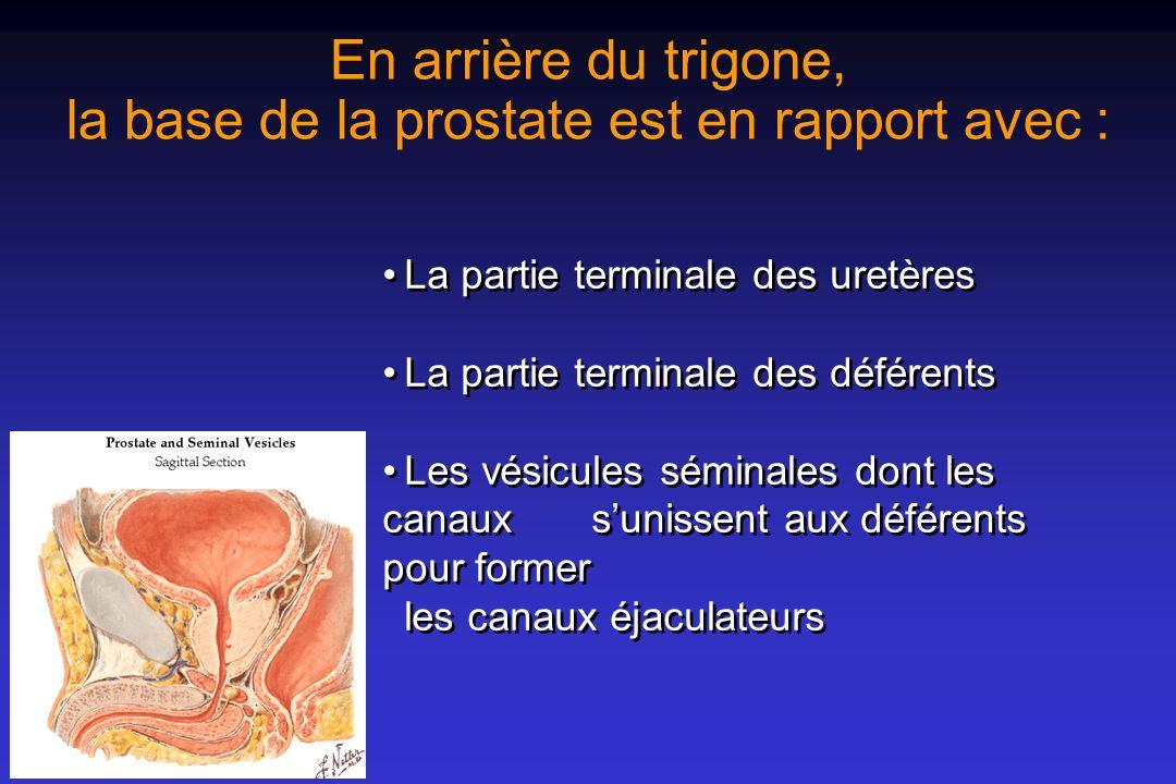 Le tissu prostatique est fait dacini glandulaires et dun tissu de soutien, le stroma Les acini sont faits de cellules sécrétoires dune membrane basale Le tissu de soutien est fait de fibres musculaires de fibroblastes de tissu endothélial Les acini sont faits de cellules sécrétoires dune membrane basale Le tissu de soutien est fait de fibres musculaires de fibroblastes de tissu endothélial