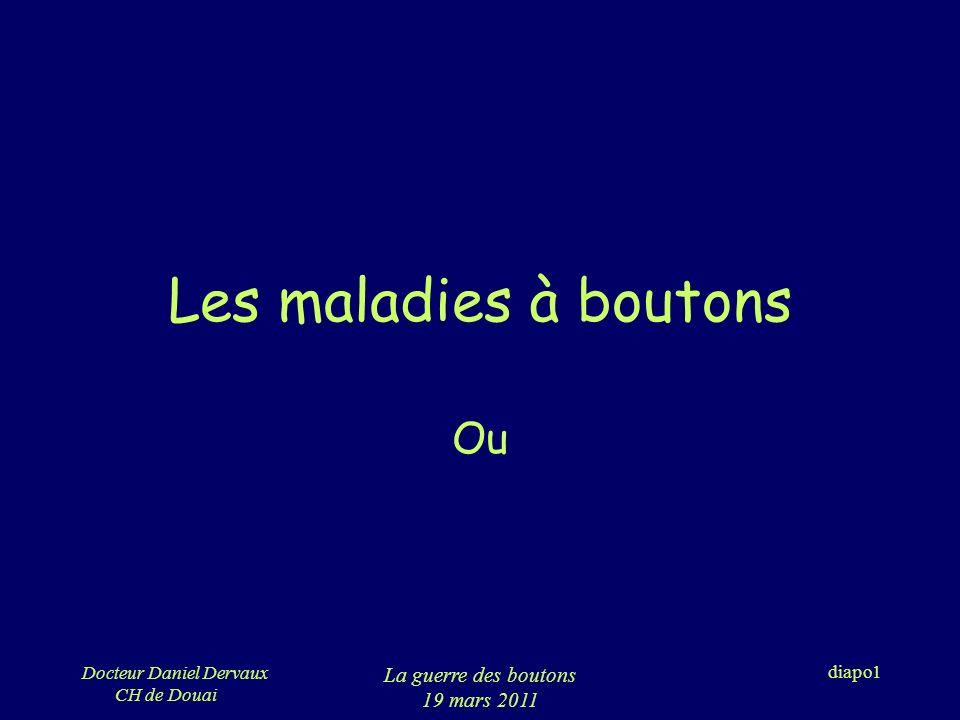 Docteur Daniel Dervaux CH de Douai La guerre des boutons 19 mars 2011 diapo52 Lurticaire aiguë 2 lésions : –Langio œdème »Douleur »>72h