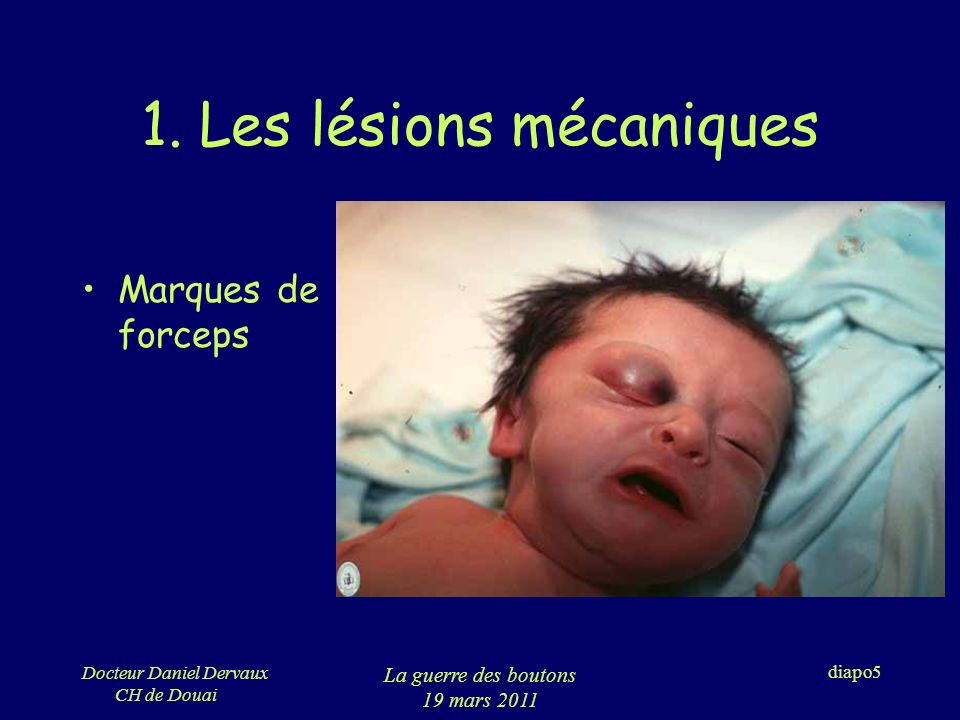 Docteur Daniel Dervaux CH de Douai La guerre des boutons 19 mars 2011 diapo6 1.