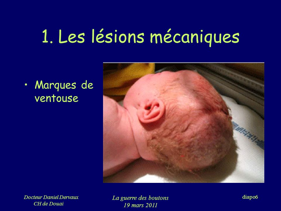 Docteur Daniel Dervaux CH de Douai La guerre des boutons 19 mars 2011 diapo7 1.
