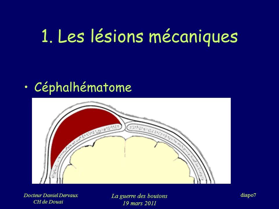 Docteur Daniel Dervaux CH de Douai La guerre des boutons 19 mars 2011 diapo28 5.