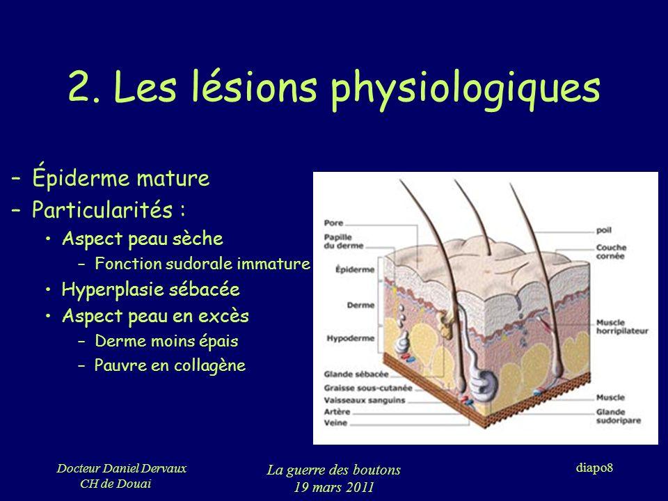 Docteur Daniel Dervaux CH de Douai La guerre des boutons 19 mars 2011 diapo39 Fistules préhélicénne