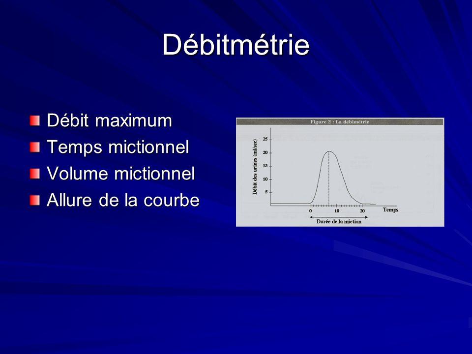 Débitmétrie Débit maximum Temps mictionnel Volume mictionnel Allure de la courbe