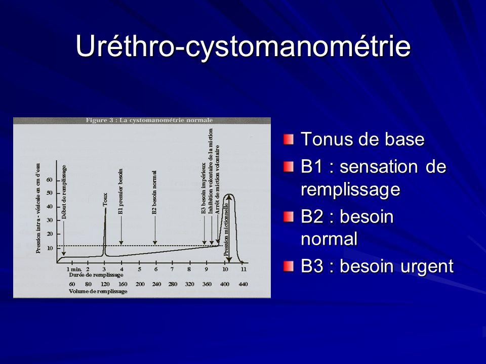 Uréthro-cystomanométrie Tonus de base B1 : sensation de remplissage B2 : besoin normal B3 : besoin urgent