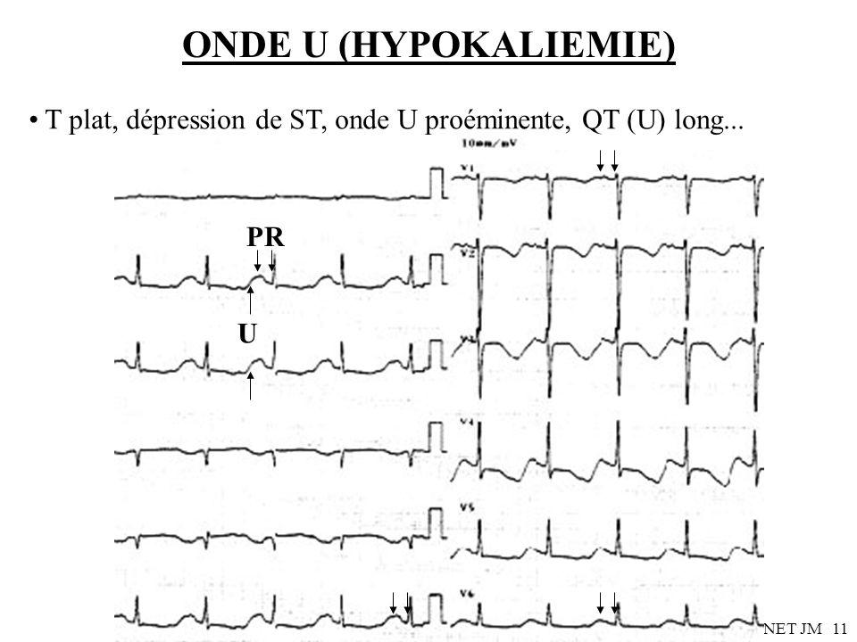 Dr SENET JM11 ONDE U (HYPOKALIEMIE) T plat, dépression de ST, onde U proéminente, QT (U) long... PR U