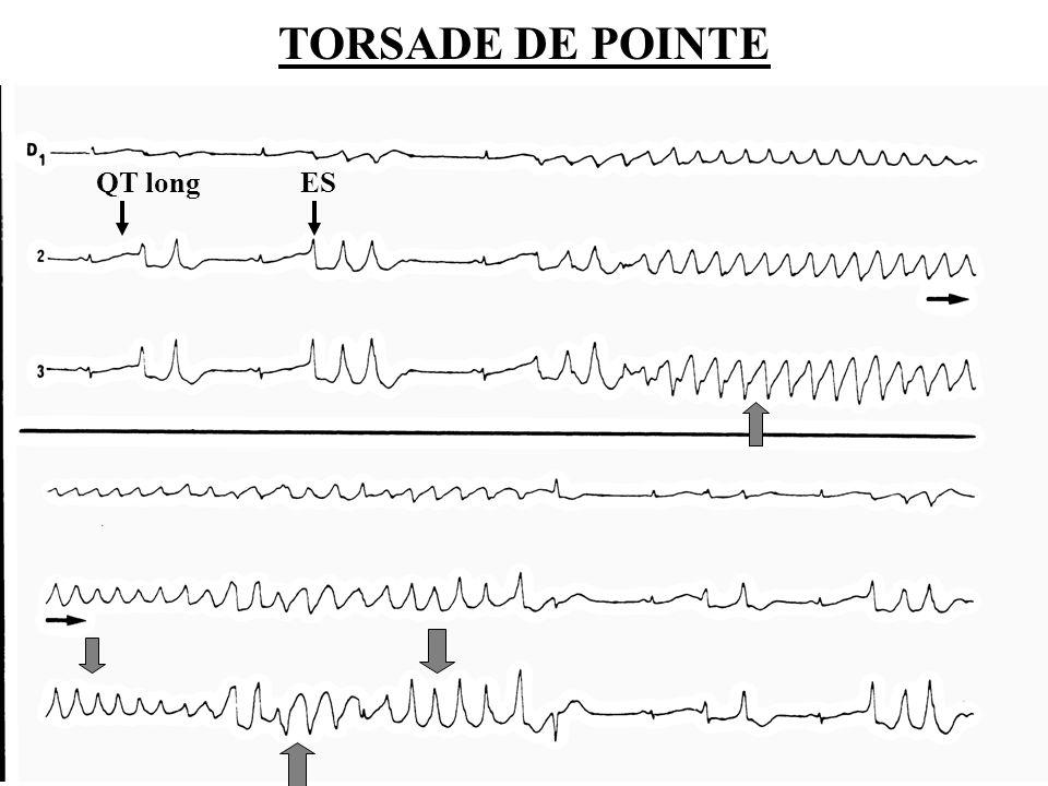 Dr SENET JM14 TORSADE DE POINTE QT long ES