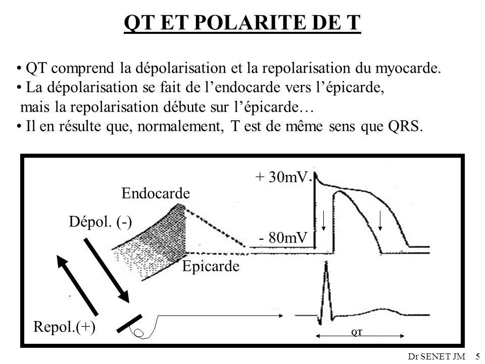 Dr SENET JM5 Endocarde Epicarde Dépol. (-) Repol.(+) + 30mV - 80mV QT ET POLARITE DE T QT comprend la dépolarisation et la repolarisation du myocarde.