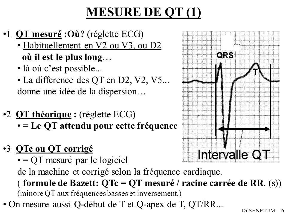 Dr SENET JM6 MESURE DE QT (1) 1 QT mesuré :Où? (réglette ECG) Habituellement en V2 ou V3, ou D2 où il est le plus long… là où cest possible... La diff