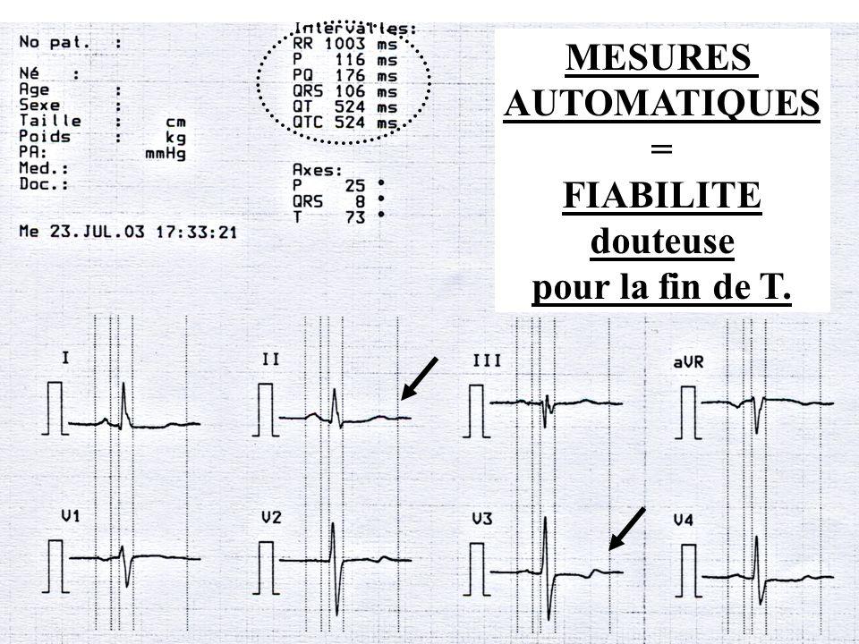 Dr SENET JM8 MESURES AUTOMATIQUES = FIABILITE douteuse pour la fin de T.