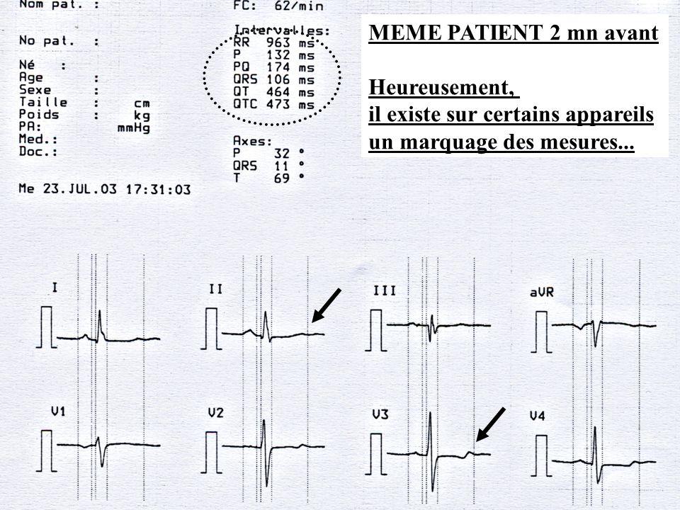 Dr SENET JM9 MEME PATIENT 2 mn avant Heureusement, il existe sur certains appareils un marquage des mesures...