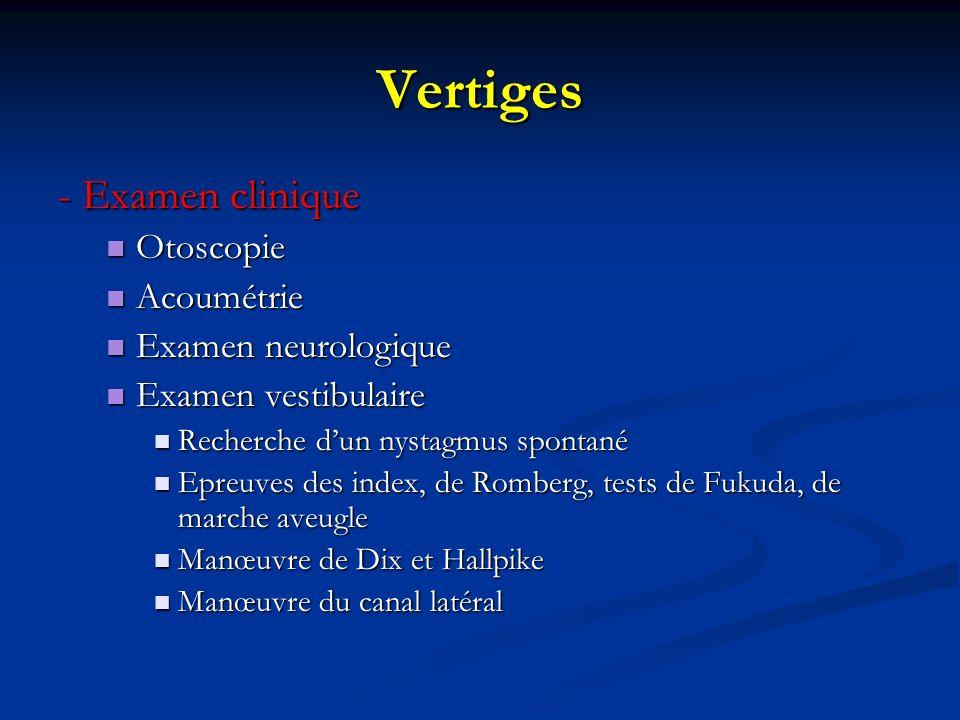 Vertiges - Examen clinique Otoscopie Otoscopie Acoumétrie Acoumétrie Examen neurologique Examen neurologique Examen vestibulaire Examen vestibulaire R