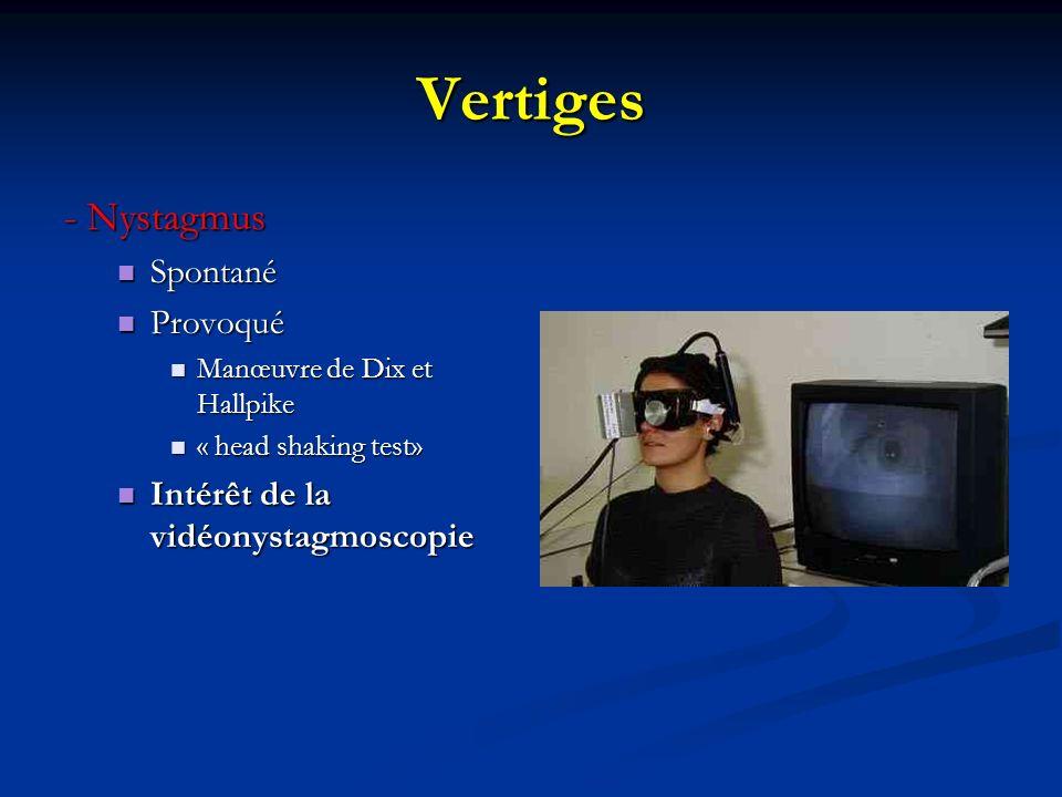 Vertiges - Nystagmus Spontané Spontané Provoqué Provoqué Manœuvre de Dix et Hallpike Manœuvre de Dix et Hallpike « head shaking test» « head shaking t