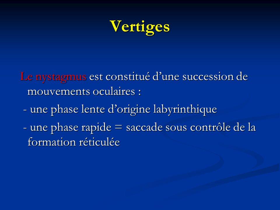 Vertiges Le nystagmus est constitué dune succession de mouvements oculaires : Le nystagmus est constitué dune succession de mouvements oculaires : - u