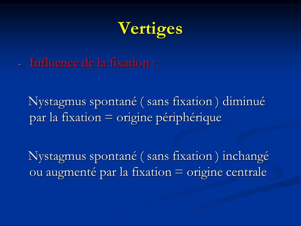 Vertiges - Influence de la fixation : Nystagmus spontané ( sans fixation ) diminué par la fixation = origine périphérique Nystagmus spontané ( sans fi