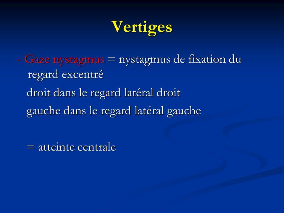 Vertiges - Gaze nystagmus = nystagmus de fixation du regard excentré droit dans le regard latéral droit droit dans le regard latéral droit gauche dans