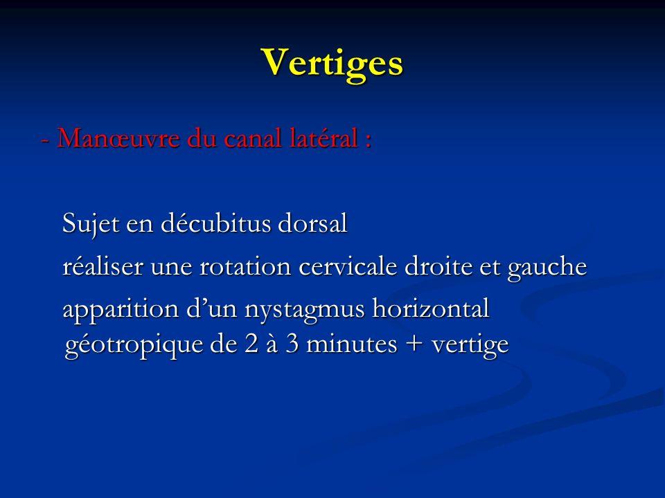 Vertiges - Manœuvre du canal latéral : Sujet en décubitus dorsal Sujet en décubitus dorsal réaliser une rotation cervicale droite et gauche réaliser u