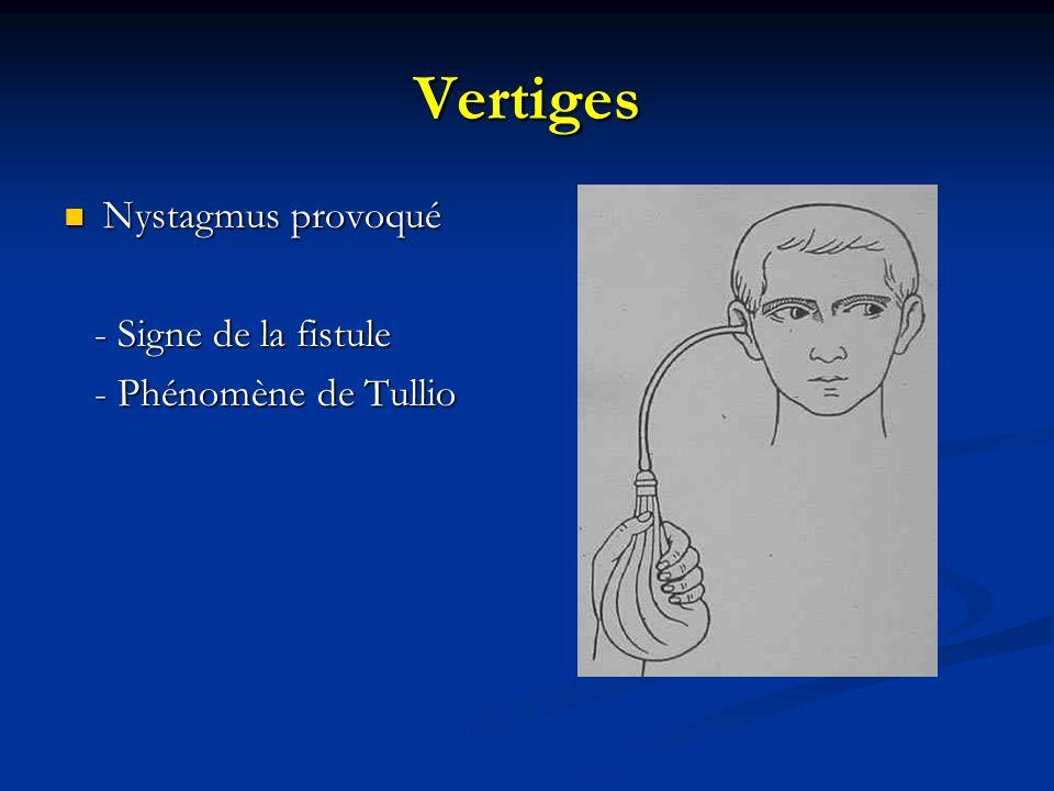 Vertiges Nystagmus provoqué Nystagmus provoqué - Signe de la fistule - Signe de la fistule - Phénomène de Tullio - Phénomène de Tullio