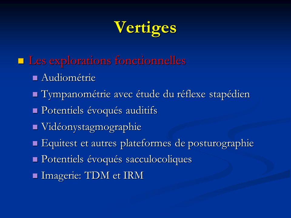 Vertiges Les explorations fonctionnelles Les explorations fonctionnelles Audiométrie Audiométrie Tympanométrie avec étude du réflexe stapédien Tympano
