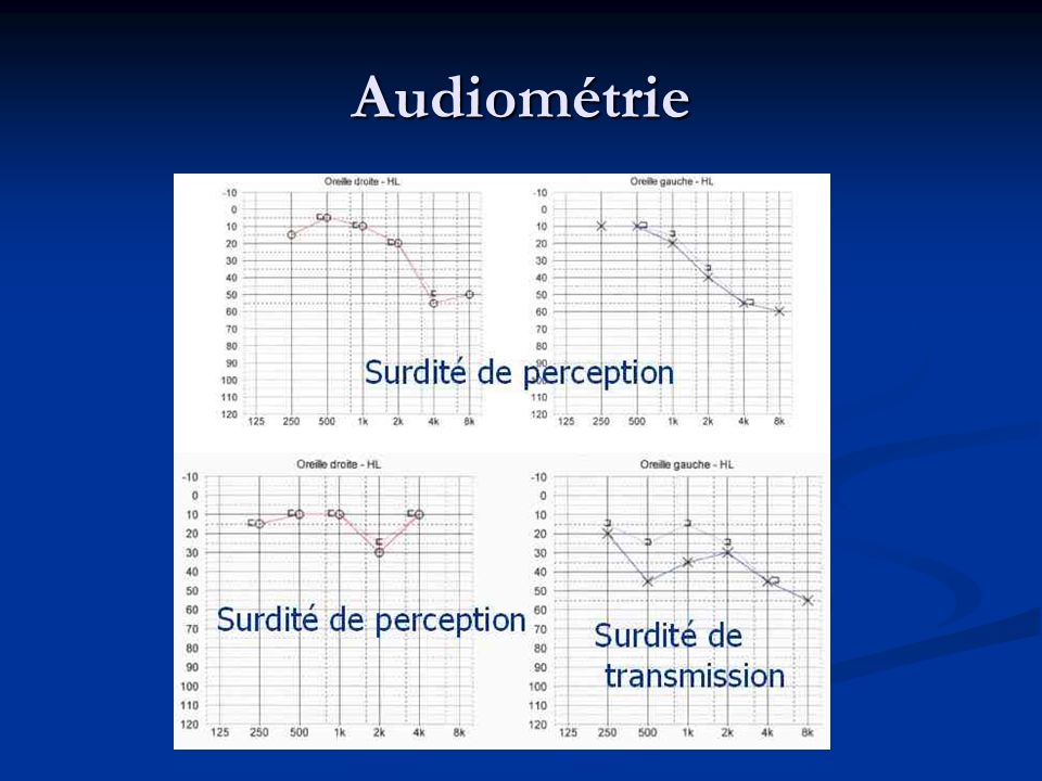 Audiométrie Surdité de perception Surdité de transmission