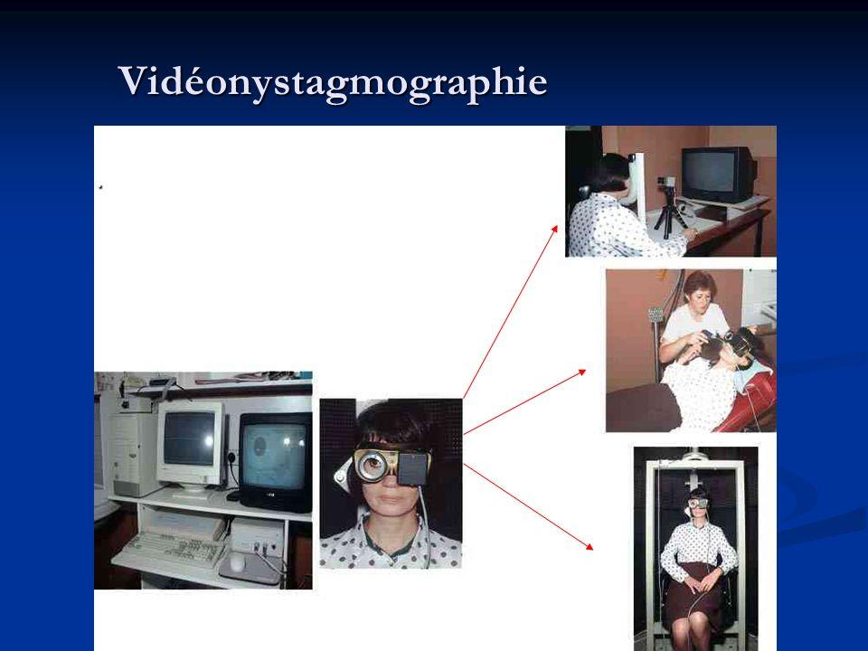 Vidéonystagmographie.