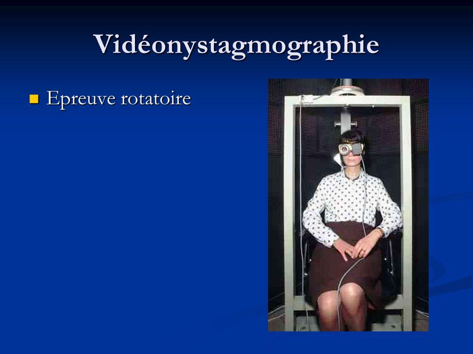 Vidéonystagmographie Epreuve rotatoire Epreuve rotatoire
