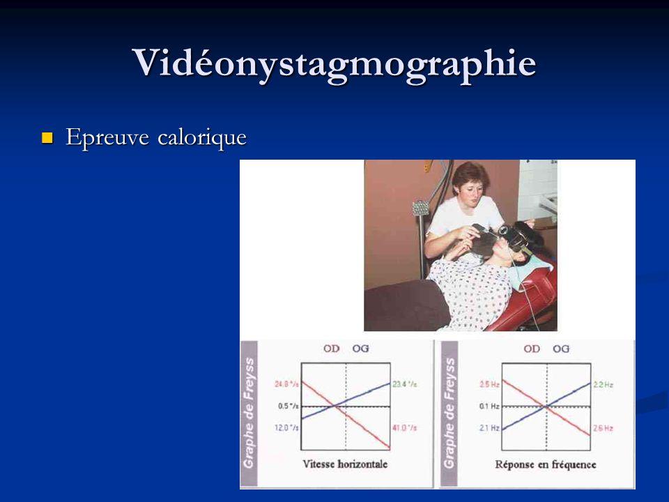 Vidéonystagmographie Epreuve calorique Epreuve calorique