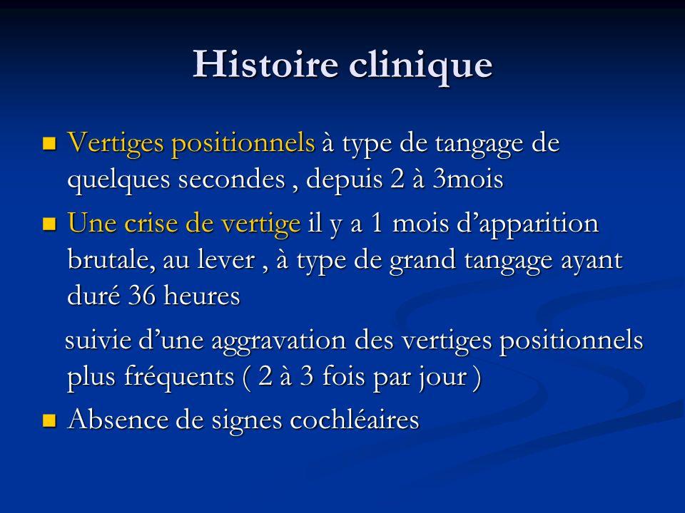 Histoire clinique Vertiges positionnels à type de tangage de quelques secondes, depuis 2 à 3mois Vertiges positionnels à type de tangage de quelques s