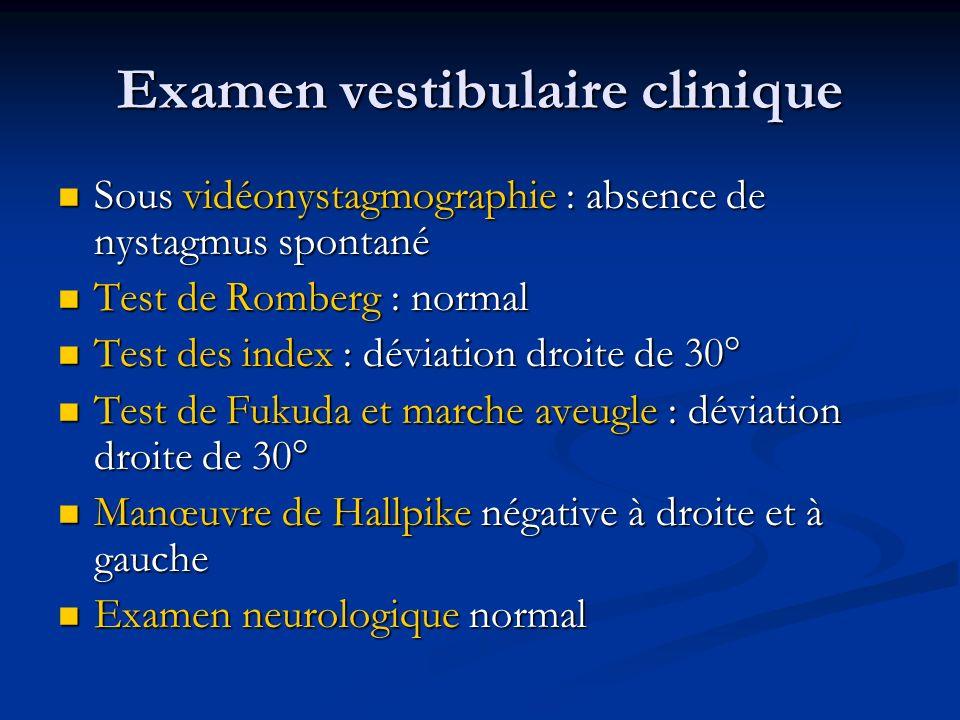 Examen vestibulaire clinique Sous vidéonystagmographie : absence de nystagmus spontané Sous vidéonystagmographie : absence de nystagmus spontané Test