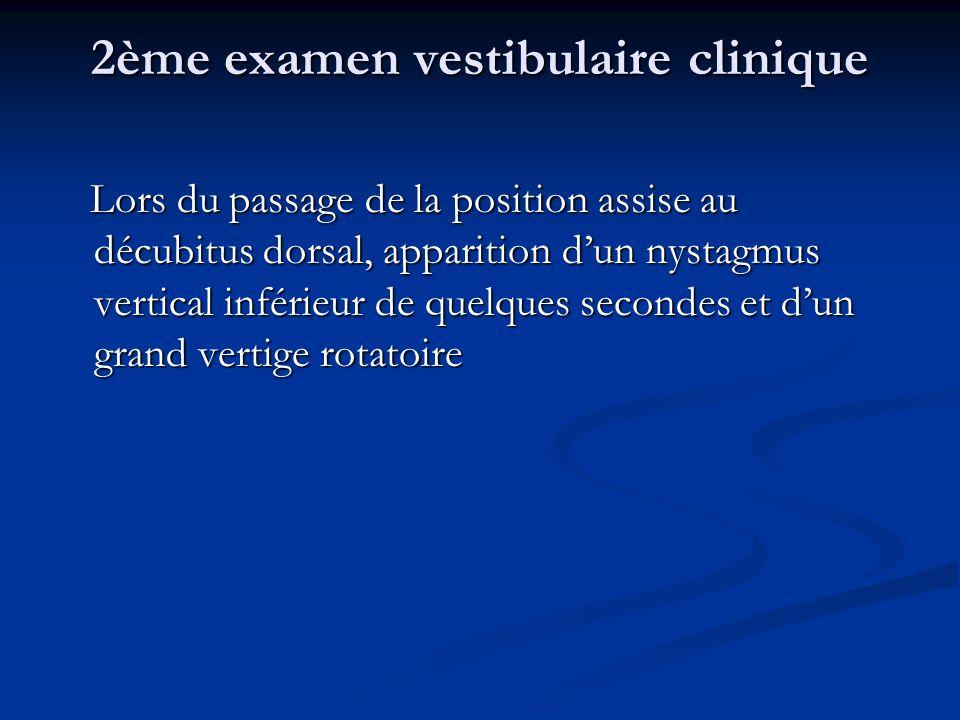 2ème examen vestibulaire clinique Lors du passage de la position assise au décubitus dorsal, apparition dun nystagmus vertical inférieur de quelques s
