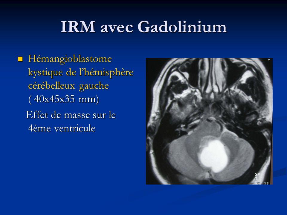 IRM avec Gadolinium Hémangioblastome kystique de lhémisphère cérébelleux gauche ( 40x45x35 mm) Hémangioblastome kystique de lhémisphère cérébelleux ga