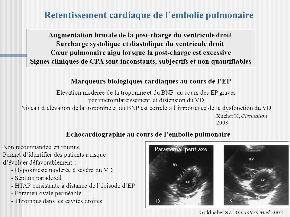 Non recommandée en routine Permet didentifier des patients à risque dévoluer défavorablement : - Hypokinésie modérée à sévère du VD - Septum paradoxal