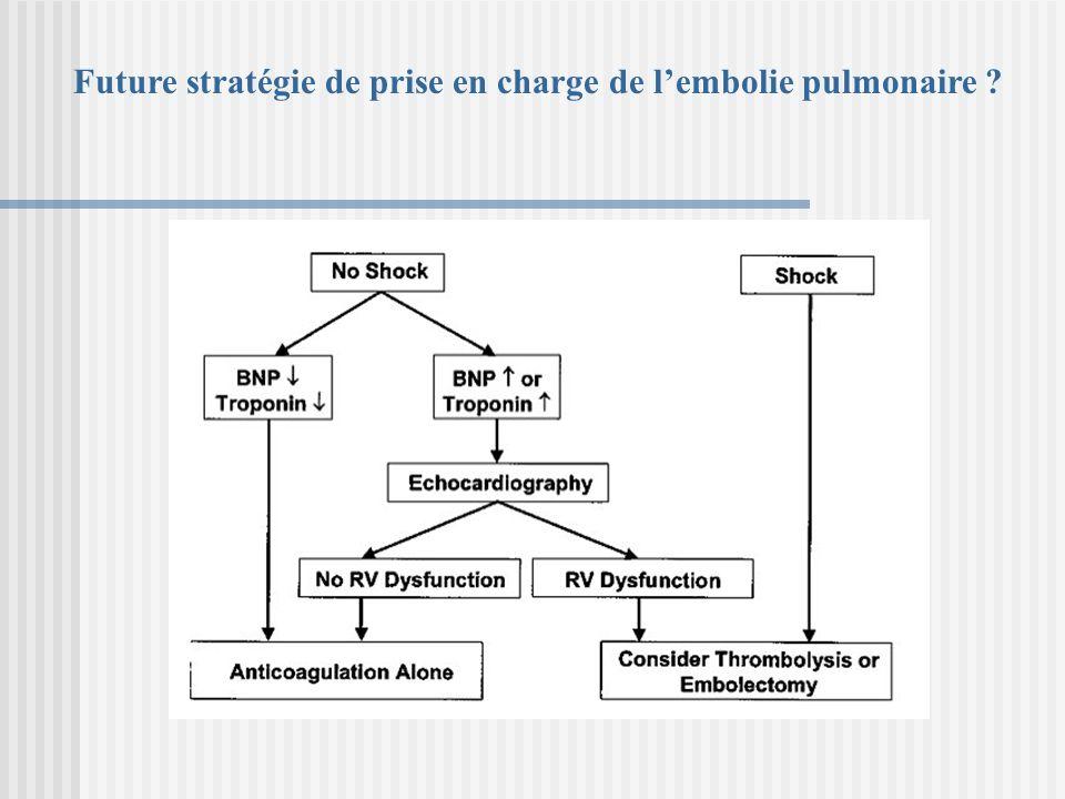 Future stratégie de prise en charge de lembolie pulmonaire ?