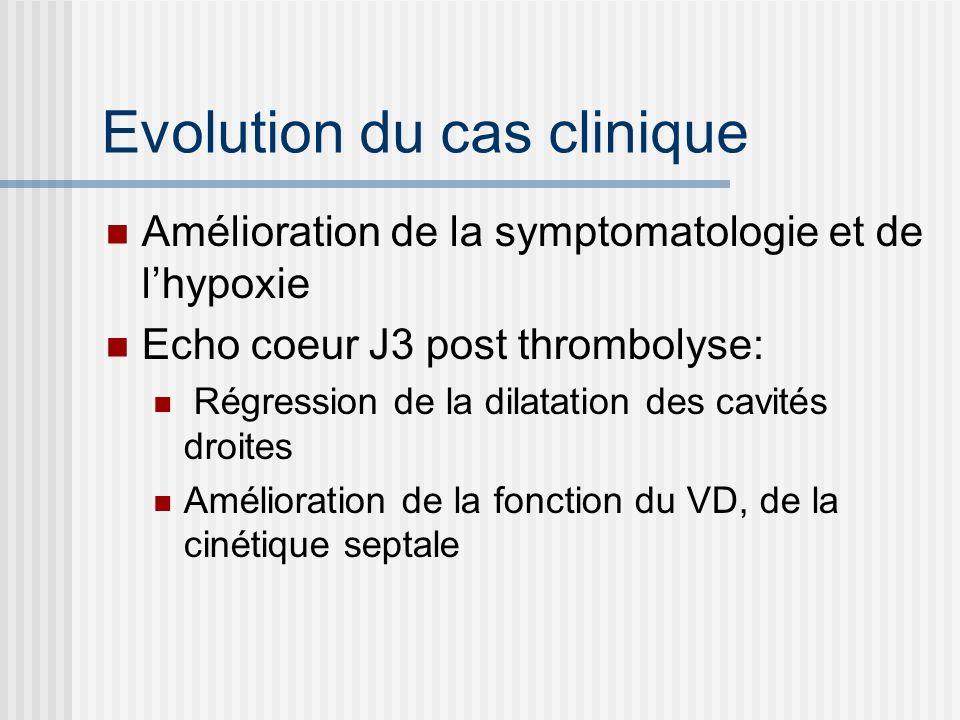 Evolution du cas clinique Amélioration de la symptomatologie et de lhypoxie Echo coeur J3 post thrombolyse: Régression de la dilatation des cavités dr