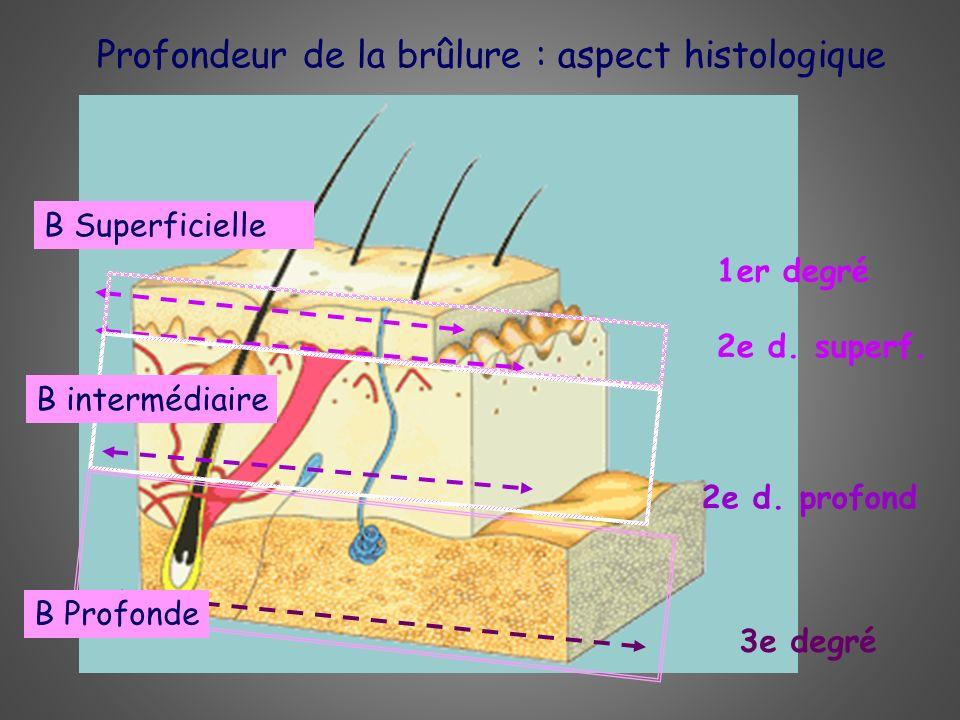 Profondeur de la brûlure : aspect histologique 1er degré 2e d. superf. 2e d. profond3e degré B Superficielle B intermédiaire B Profonde