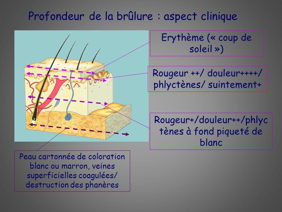 Profondeur de la brûlure : aspect clinique Erythème (« coup de soleil ») Rougeur ++/ douleur++++/ phlyctènes/ suintement+ Rougeur+/douleur++/phlyc tèn