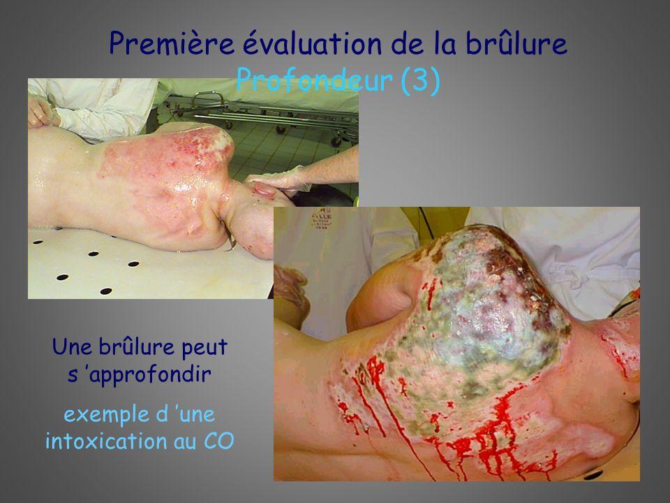 Première évaluation de la brûlure Profondeur (3) Une brûlure peut s approfondir exemple d une intoxication au CO