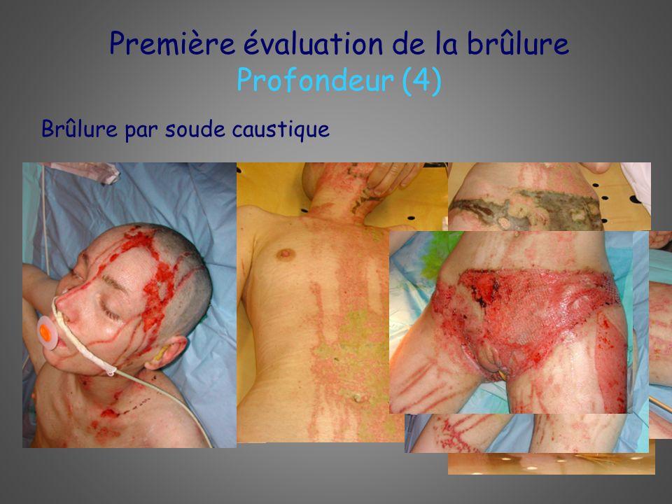 Première évaluation de la brûlure Profondeur (4) Brûlure par soude caustique