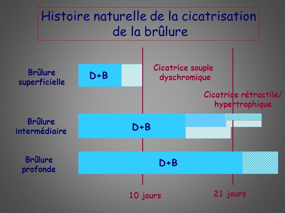 Histoire naturelle de la cicatrisation de la brûlure Brûlure superficielle Brûlure intermédiaire Brûlure profonde 10 jours 21 jours Cicatrice souple d