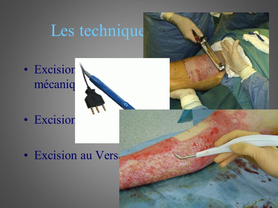 Les techniques dexcision Excision tangentielle au dermatome mécanique Excision profonde au bistouri électrique Excision au Versajet