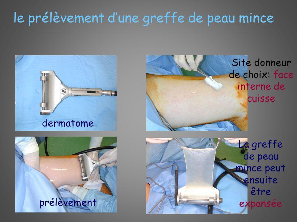 le prélèvement dune greffe de peau mince dermatome Site donneur de choix: face interne de cuisse prélèvement La greffe de peau mince peut ensuite être