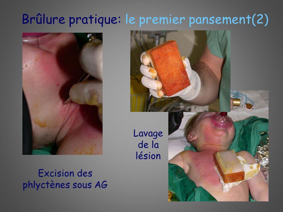 Brûlure pratique: le premier pansement(2) Excision des phlyctènes sous AG Lavage de la lésion