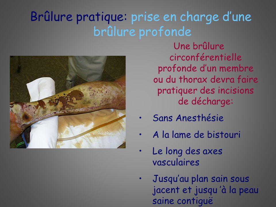 Brûlure pratique: prise en charge dune brûlure profonde Une brûlure circonférentielle profonde dun membre ou du thorax devra faire pratiquer des incis